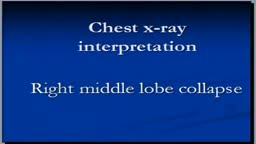 CHest x-ray interpretation --Right middle lobe collapse
