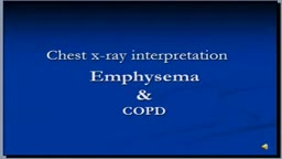 Chest x-ray interpretation -- COPD and Emphysema