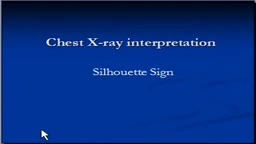 Chest x-ray --Silhouette sign