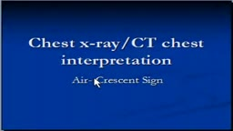 Chest x-ray -- CT Scan, air crescent sign