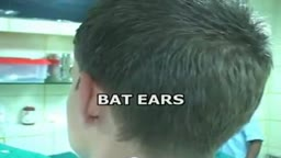 Bat Ears Correction Plastic Surgery