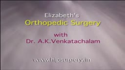 Knee Replacement patient story