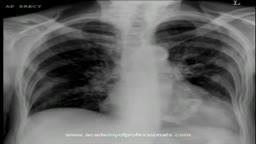 chest x-ray, mitral valve calcification