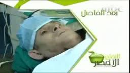 Dr. Samir Abd Elghaffar discussing RFA treatment of Hepatocellular Carcinoma