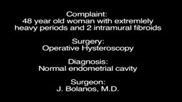 A hysteroscopy showing a case of 2 intramural fibroids