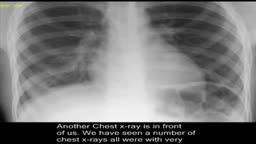 Pneumonia, on chest x-ray.