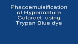 Hypermature cataract Phacoemulsification using Trypan Blue