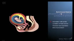 Amniocentesis Ultrasound Guided