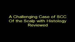 Surgery Video Vignettes / Histopathology