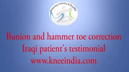 Hammer toe and bunion surgery