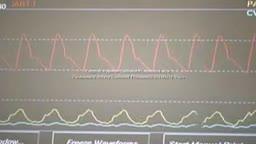 Central Venous Catheter Placement CVP & Pulmonary Artery Catheter