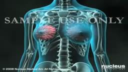 Pathology Breast Biopsy Techniques