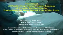 Treatment of Penis Deep Dorsal Venous Leakage of Erectile Dysfunction by Embedding the Deep Dorsal Vein