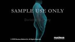 Weight Reduction Surgery Animation 3D