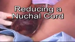 Umbilical Cord Around Fetal Neck During Delivery