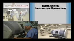 Robot - Assisted Laparoscopic Myomectomy