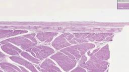 Histology of Heart Purkinje Fibers