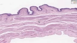 Histology of Urinary Bladder