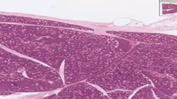 Histology of Submandibular Gland