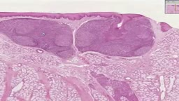 Histology of lingual Tonsil