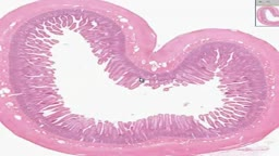 Histology of Small Intestine Jejunum
