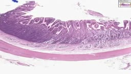 Histology of Small Intestine Duodenum