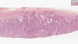 Histology of Prostate