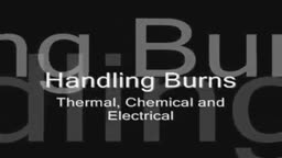 Burns Handling Thermal Electrical Chemical