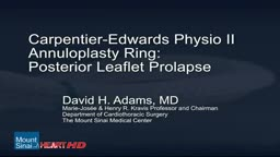 Mitral Valve Repair of Posterior Leaflet Prolapse HD