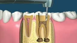 Filling Tooth Decay and Cap Animation