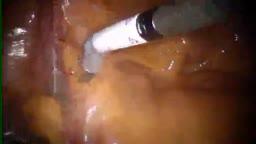Robotic Prostatectomy Surgery HD