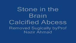 Brain Stone Calcified Abscess