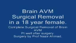 Removing ArterioVenous Malformation in Brain