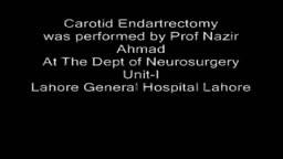 Carotid Endarterectomy Surgery