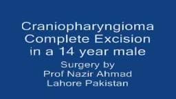 Craniopharyngioma Complete Excision