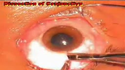 Eye Surgery Trabeculectomy