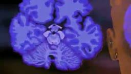Alzheimer Disease Effects