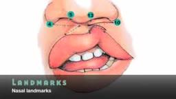 Cleft Lip Surgery Millard Unilateral