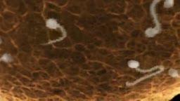 Sperm and Ovum Fusion