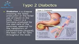 Type 2 Diabetes Causes Symptoms and Treatment