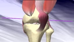Total Knee Replacement Surgery Animation