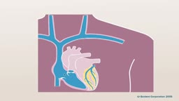 Pacemaker Implantation 3D Animation