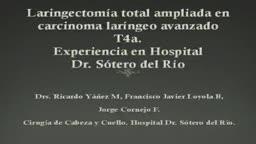 Laringectomia total ampliada en carcinoma laringeo avanzado T4a. Hospital Dr Sotero del Ri