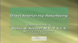 Direct Anterior Hip Resurfacing Surgery