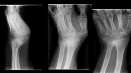 Total Wrist Arthroplasty Procedure