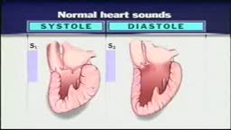 Review of heart sounds