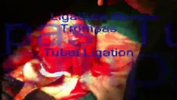 Tubal Ligation Procedure surgery
