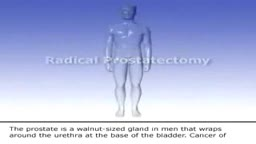 Prostate Cancer - Radical Prostatectomy