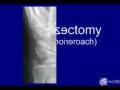 Trapeziectomy