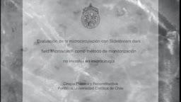 Evaluacion de la microcirculacion con SDF (Sidestream dark field) Mi